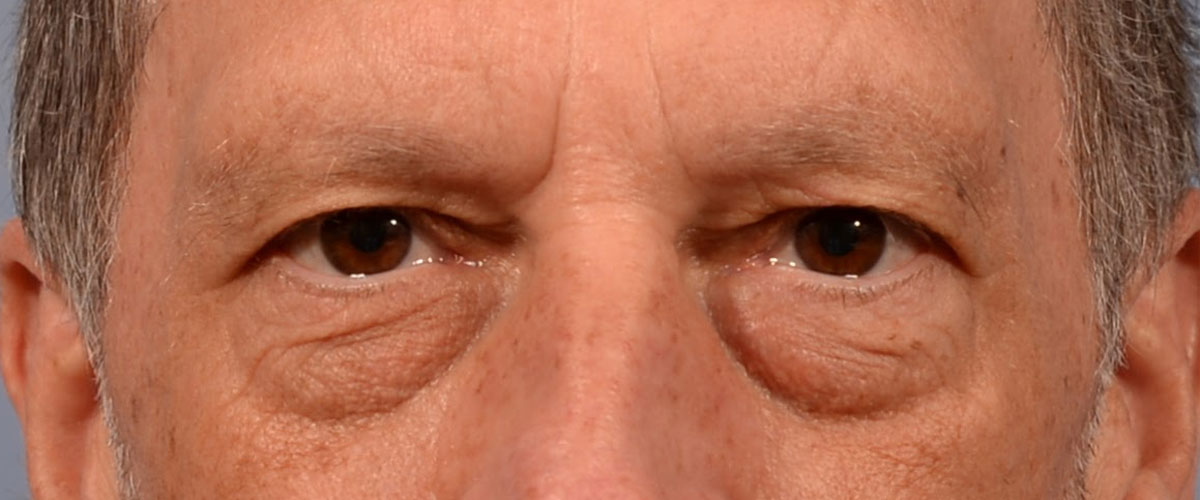 Blepharoplasty Bellevue Before & After | Patient 01 Photo 0 Thumb