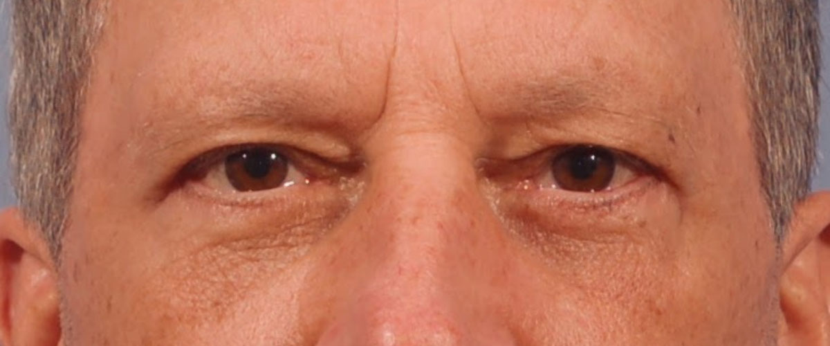 Blepharoplasty Bellevue Before & After | Patient 01 Photo 1 Thumb