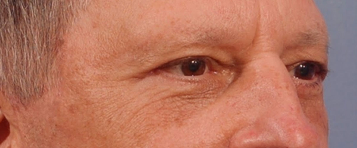 Blepharoplasty Bellevue Before & After | Patient 01 Photo 3 Thumb