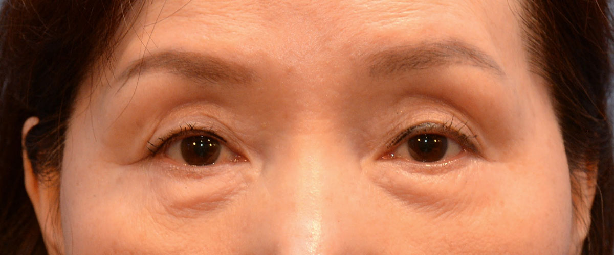 Blepharoplasty Bellevue Before & After | Patient 02 Photo 0