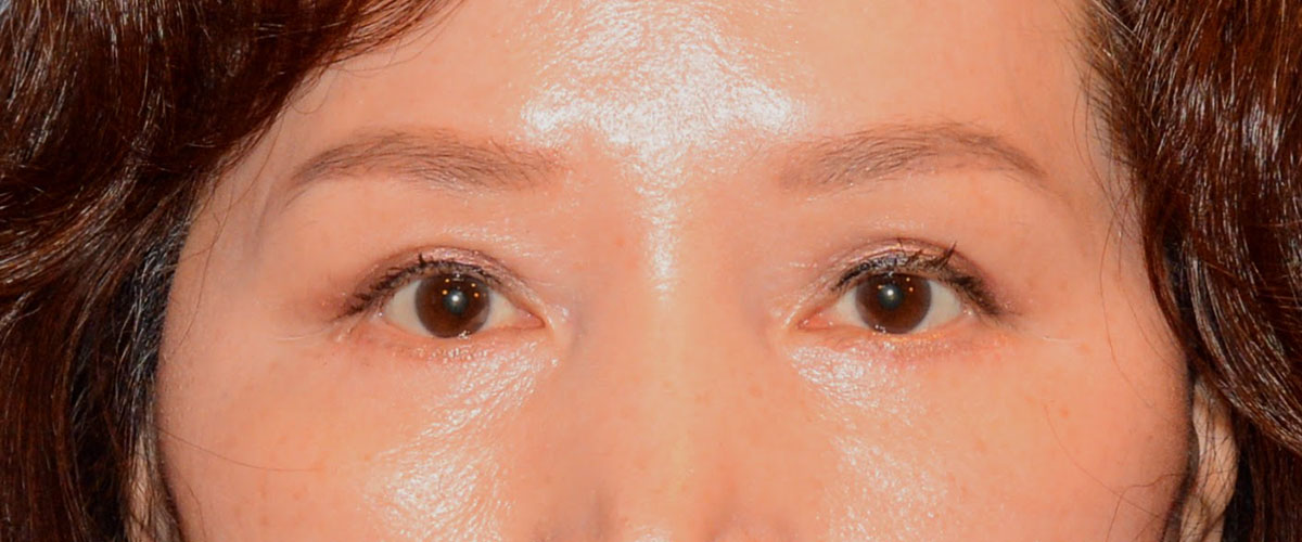 Blepharoplasty Bellevue Before & After | Patient 02 Photo 1