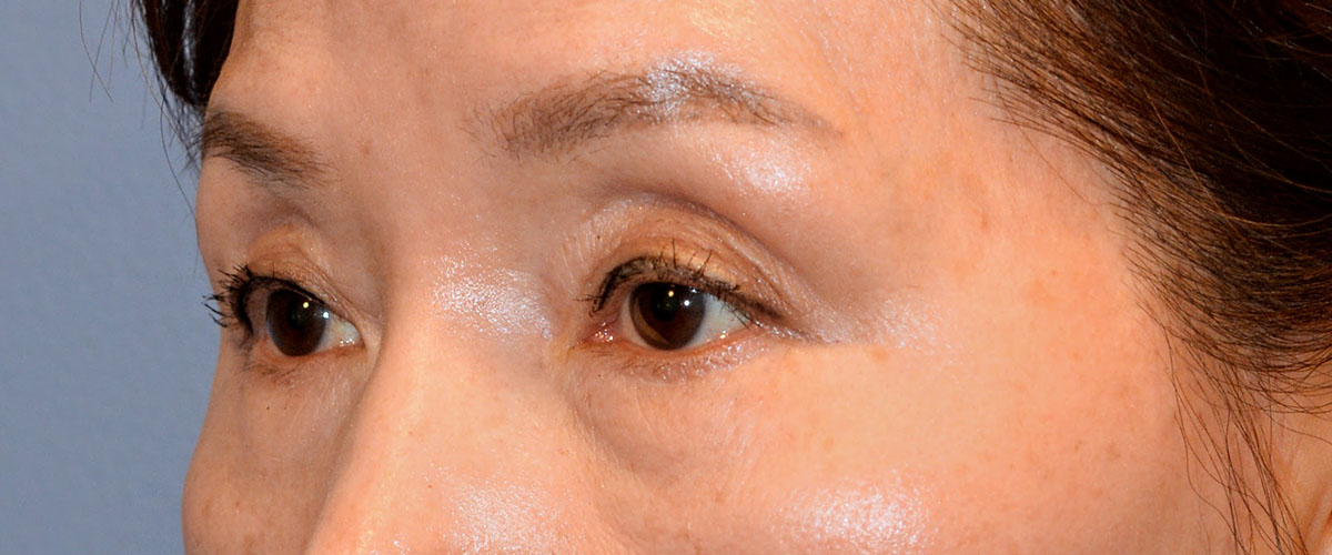 Blepharoplasty Bellevue Before & After | Patient 02 Photo 2