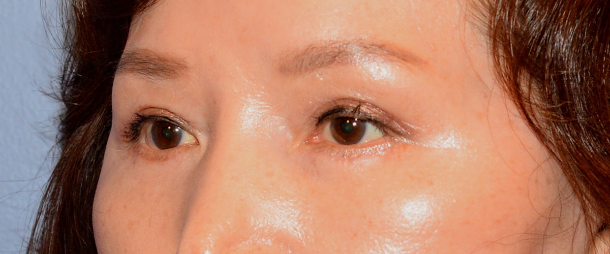 Blepharoplasty Bellevue Before & After | Patient 02 Photo 3