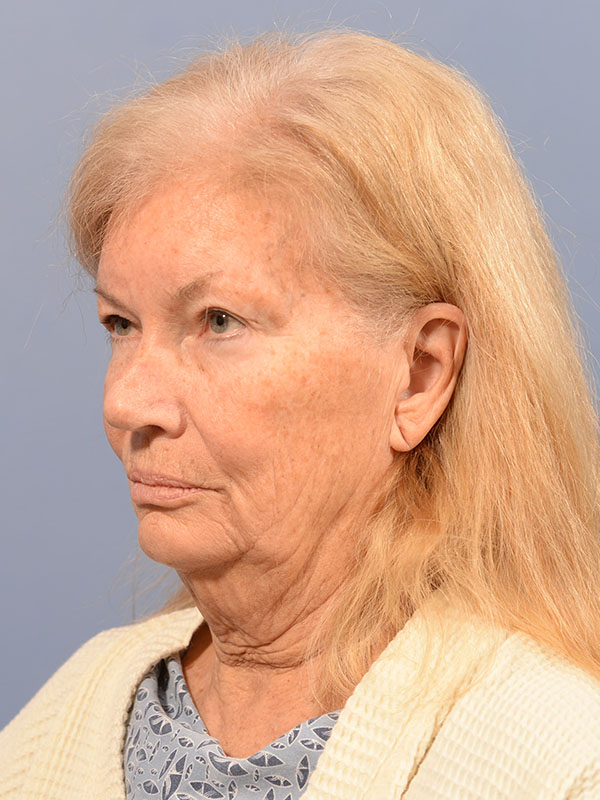 Facelift Bellevue Before & After | Patient 03 Photo 2