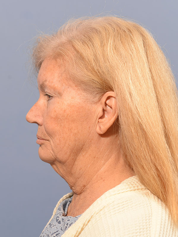 Facelift Bellevue Before & After | Patient 03 Photo 4